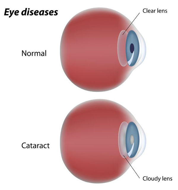 Cataracts in Bellefonte