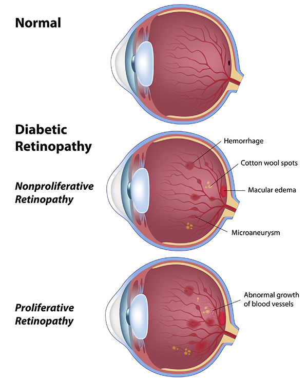 Diabetic Retinopathy in 18623